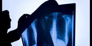 X-rays, even in low dose, may harm your heart